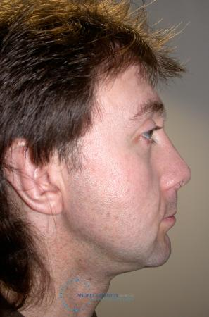Revision Rhinoplasty: Patient 20 - After Image 3