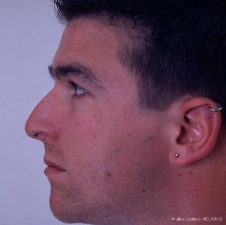 Rhinoplasty: Patient 35 - Before Image 2