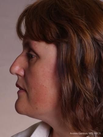 Rhinoplasty: Patient 42 - Before Image 5