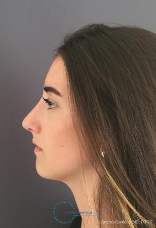 Rhinoplasty: Patient 100 - After Image 5