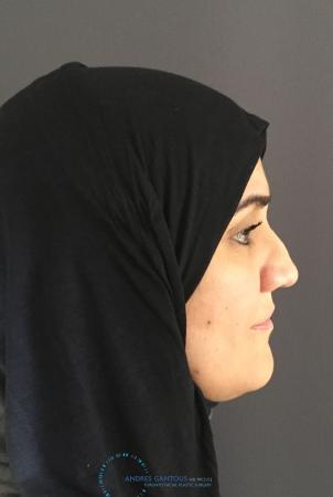 Rhinoplasty: Patient 6 - Before and After Image 6