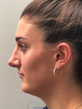 Rhinoplasty: Patient 6 - After 6