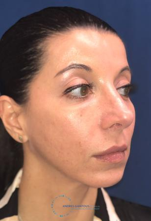 Rhinoplasty: Patient 64 - After Image 4