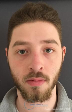 Rhinoplasty: Patient 100 - After Image 1