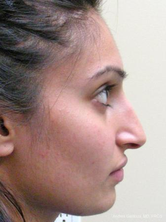 Rhinoplasty: Patient 29 - Before and After Image 5