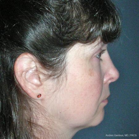 Reconstructive Rhinoplasty: Patient 5 - After Image 3