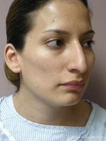 Rhinoplasty: Patient 58 - Before Image 2