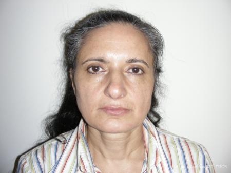 Eyelid Lift: Patient 1 - After Image