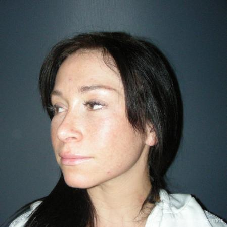 Rhinoplasty: Patient 47 - After Image 4