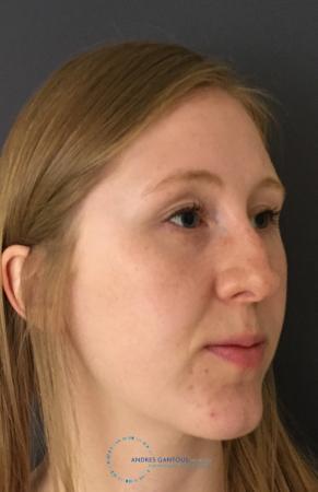 Rhinoplasty: Patient 27 - Before Image 4