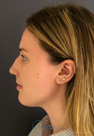 Rhinoplasty: Patient 93 - Before and After Image 6