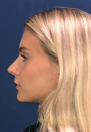 Rhinoplasty: Patient 2 - After Image 6