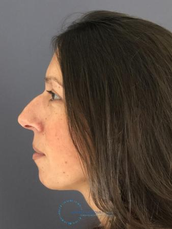 Rhinoplasty: Patient 9 - Before and After Image 5