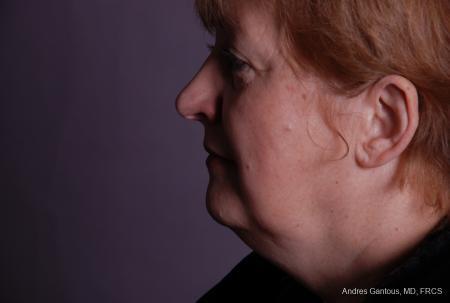 Facelift & Neck Lift: Patient 9 - After Image 5