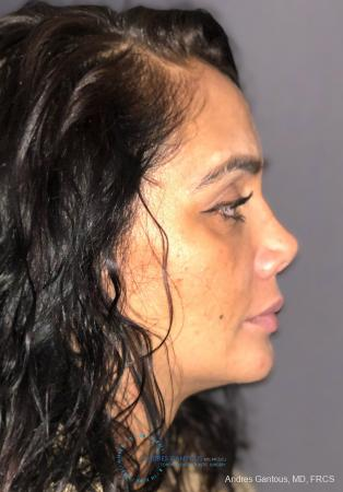Revision Rhinoplasty: Patient 13 - After Image 5
