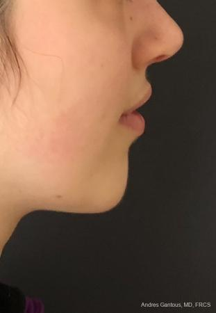Chin Augmentation: Patient 5 - After Image 3