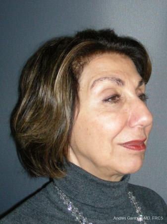 Rhinoplasty: Patient 55 - Before Image 4