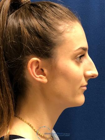 Rhinoplasty: Patient 6 - Before 5