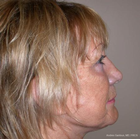 Facelift & Neck Lift: Patient 4 - After Image 3