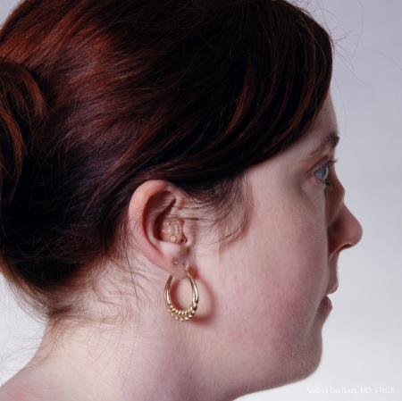Reconstructive Rhinoplasty: Patient 2 - Before and After Image 5