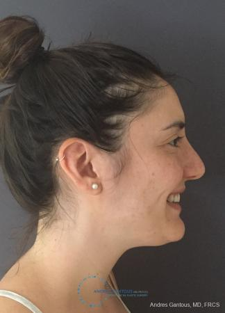 Rhinoplasty: Patient 86 - After Image 5