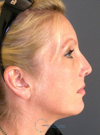 Revision Rhinoplasty: Patient 16 - After Image 5