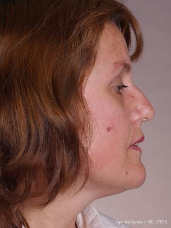 Rhinoplasty: Patient 42 - Before Image 3