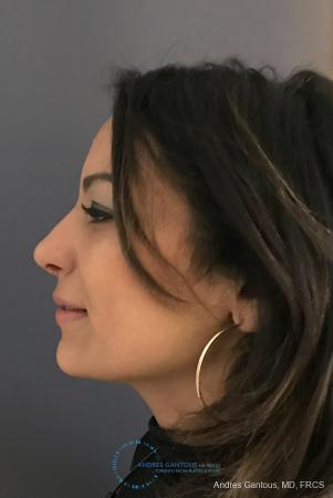 Revision Rhinoplasty: Patient 12 - After Image 6