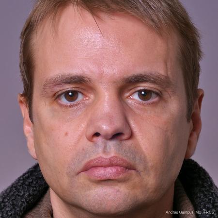 Rhinoplasty: Patient 40 - Before Image 1