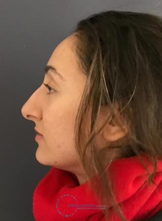 Rhinoplasty: Patient 62 - Before and After Image 6