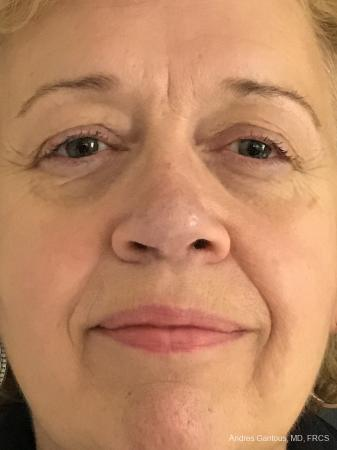 Rhinoplasty: Patient 21 - After Image 1
