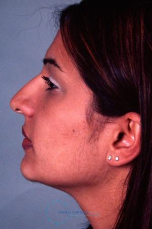Rhinoplasty: Patient 32 - Before and After Image 4