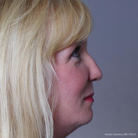 Rhinoplasty: Patient 38 - Before Image 4