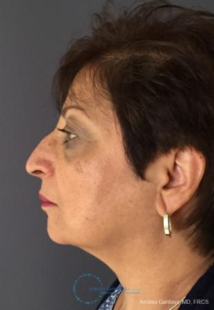 Rhinoplasty: Patient 94 - Before and After Image 6