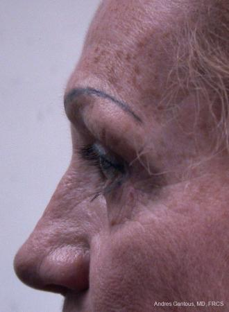 Eyelid Lift: Patient 8 - Before and After Image 5