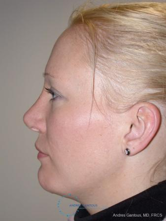 Rhinoplasty: Patient 97 - After Image 4