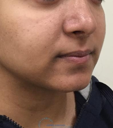 Chin Augmentation: Patient 4 - Before and After Image 2