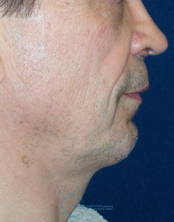 Chin Augmentation: Patient 3 - After Image 3
