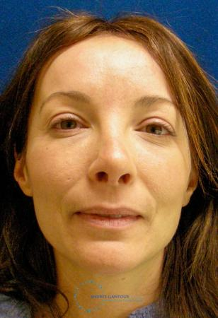 Revision Rhinoplasty: Patient 2 - After Image