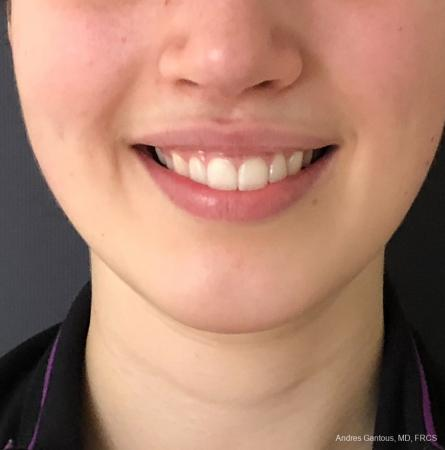 Chin Augmentation: Patient 5 - After Image