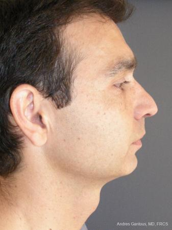Rhinoplasty: Patient 45 - Before Image 3