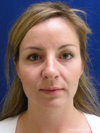 Rhinoplasty: Patient 28 - Before Image 1
