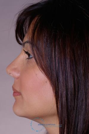 Rhinoplasty: Patient 32 - After Image 4