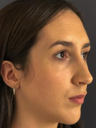 Rhinoplasty: Patient 8 - After Image 4