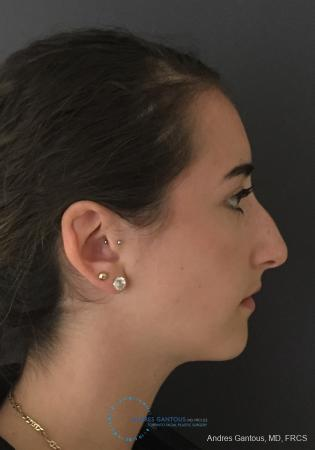 Rhinoplasty: Patient 100 - Before Image 4