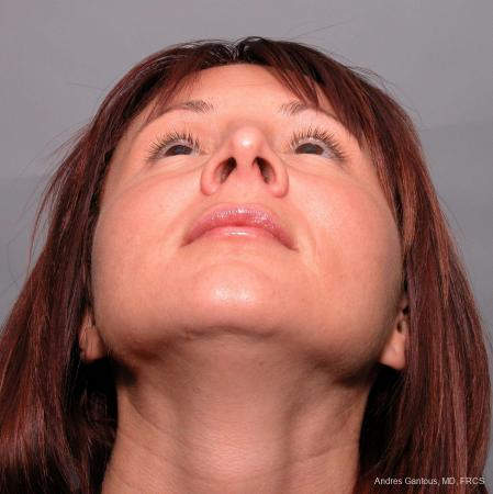 Rhinoplasty: Patient 38 - Before and After Image 4