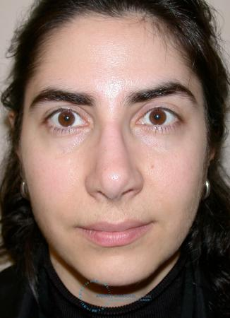 Revision Rhinoplasty: Patient 15 - After Image 1