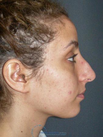 Rhinoplasty: Patient 74 - Before Image 5