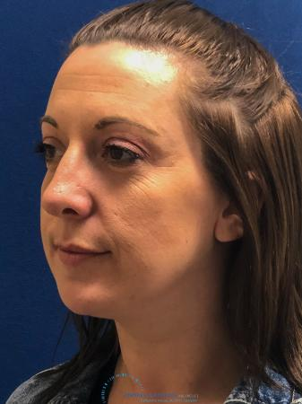 Rhinoplasty: Patient 27 - Before Image 3