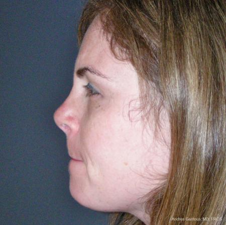 Reconstructive Rhinoplasty: Patient 4 - After Image 5